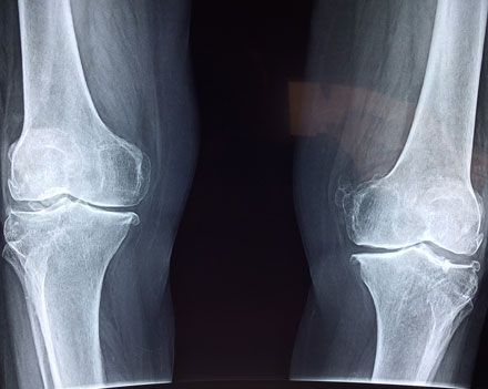 knee arthritis and joint pain treatment