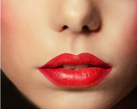 Lips after Lip Augmentation with Restylane