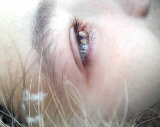Treatment of Eye Bags with Juvderm