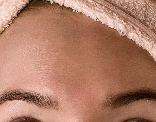 Treating Glabellar Lines with Botox
