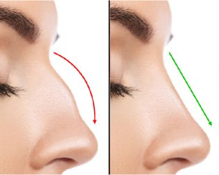 Non-Surgical Rhinoplasty Part 2