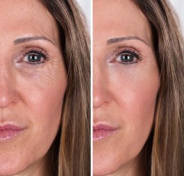 Eye Rejuvenation Treatment Before - After